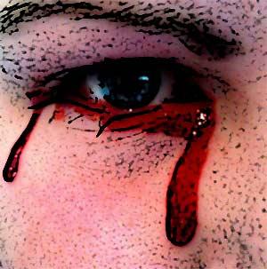 фото кровавые слёзы